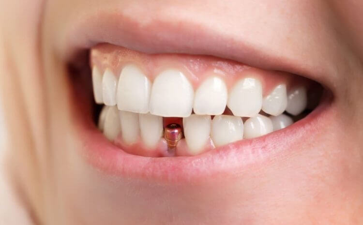 What makes you a good candidate for dental implants